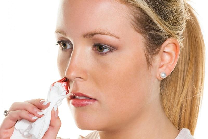 Оказывается, ты всегда останавливал носовое кровотечение неправильно! Губительная ошибка…